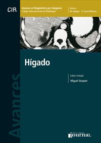 Avances en diagnóstico por imágenes: Hígado